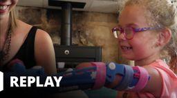 Chirurgie pour enfants : ils redonnent le sourire aux familles