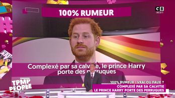 Complexé par sa calvitie, Harry aurait subi en secret un traitement