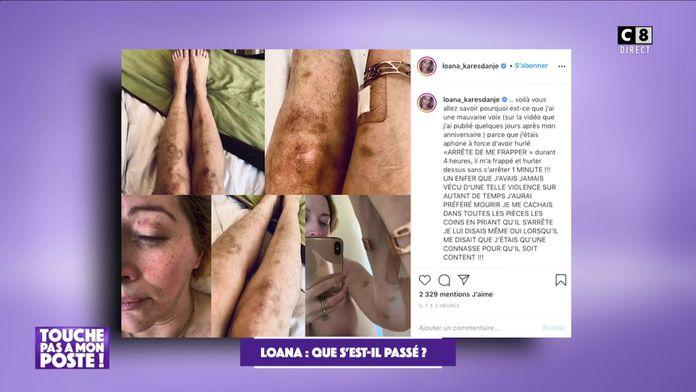 Loana rouée de coups par son ex-conjoint : Elle publie les photos sur son compte Instagram