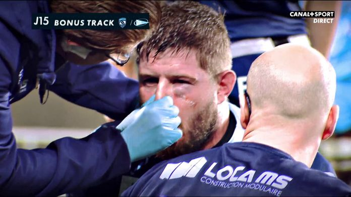 Le Bonus Track du 20/02 : Late Rugby Club